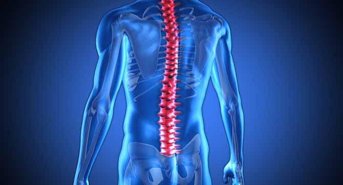 Rdzeniowy zanik mięśni
