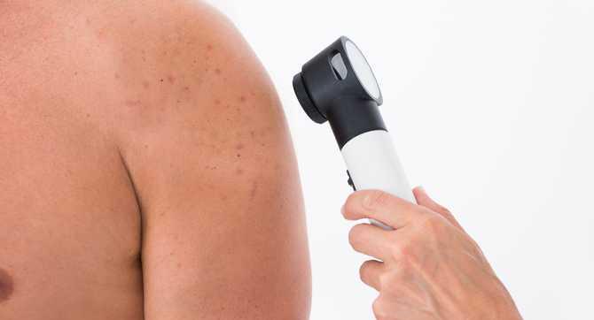 Nowotwory skóry – rodzaje, objawy i leczenie