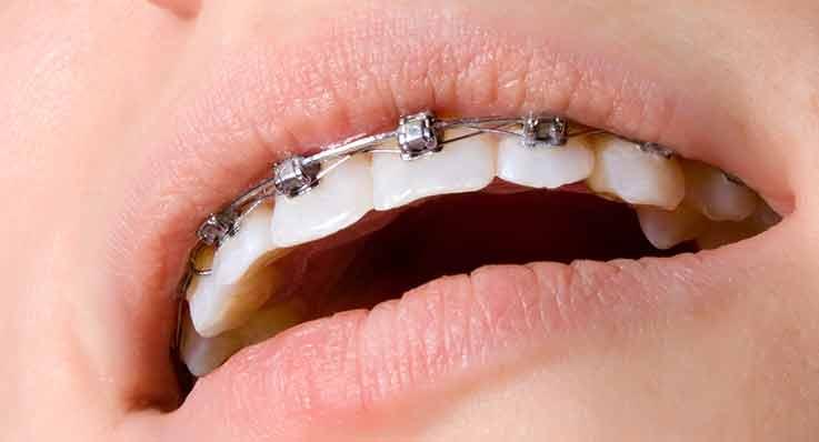 Aparat ortodontyczny – moda czy potrzeba?